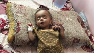 Yemen conflict: A nation's agony as cholera and hunger spread