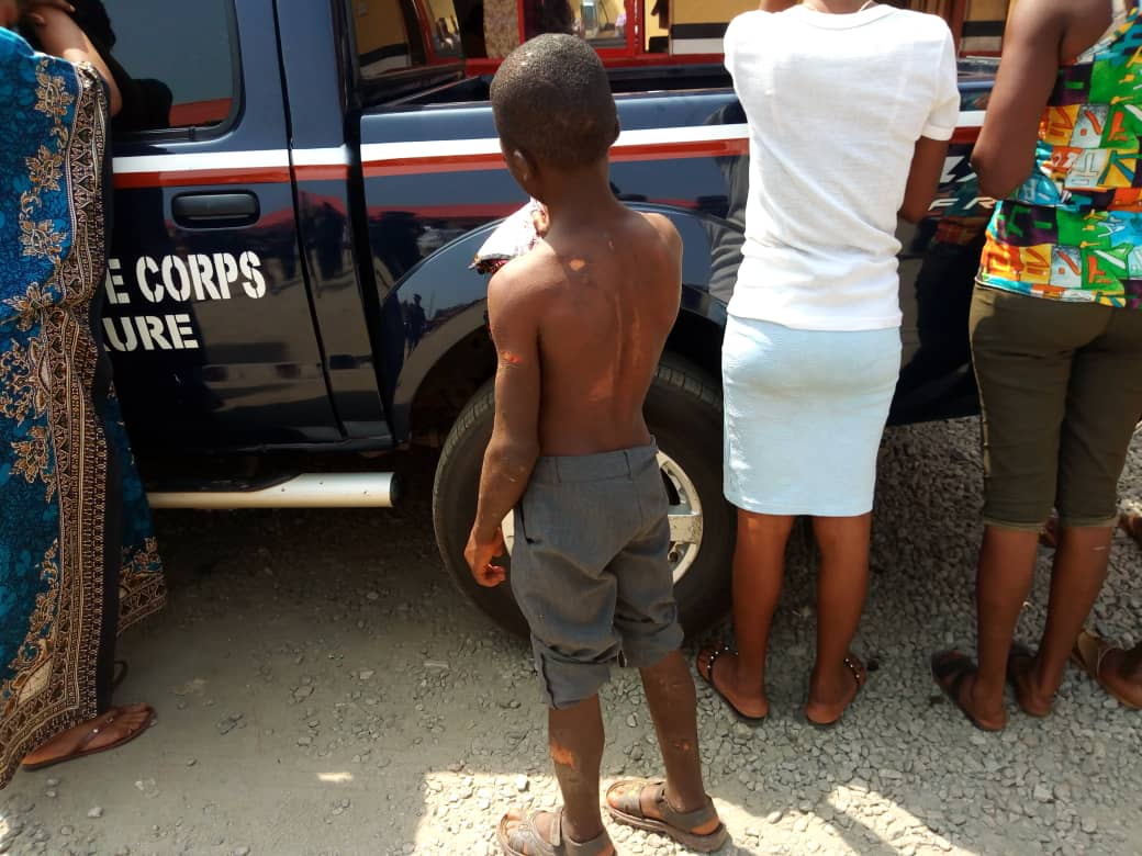 NSCDC arrest woman for allegedly using hot water, razor blade on 12-year-old houseboy in Ondo
