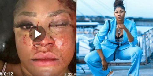 Fake Assassination: UK-based Doctor Reveals The Inconsistency In Actress Angela Okorie's Attempted Assassination Story