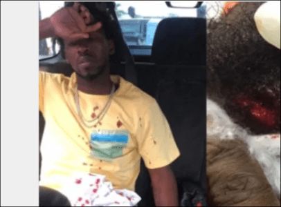 Singer, Orezi Survives Terrible Auto Crash On Third Mainland Bridge, Suffers Jaw Injury