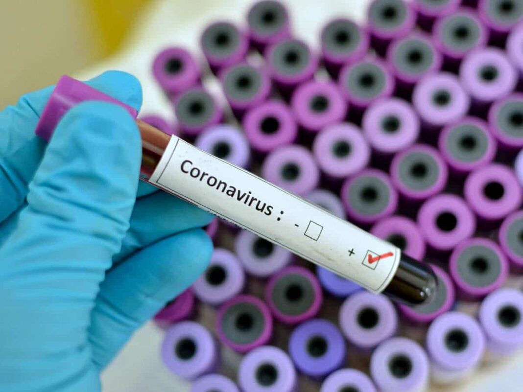 Nigeria news : COVID-19: Expert explains adverse effect of coronavirus on elderly people