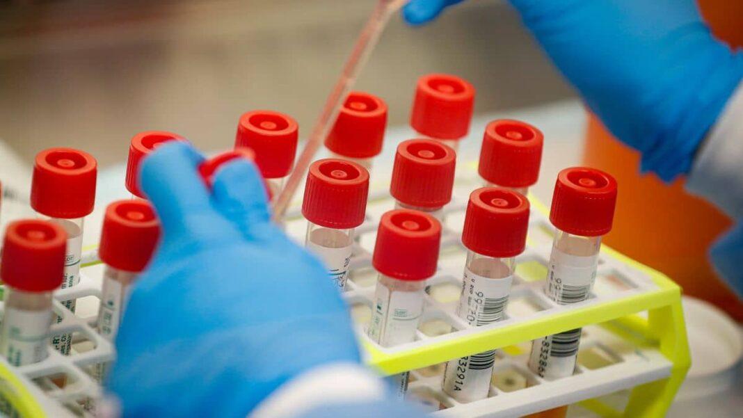 UK news : Coronavirus vaccine: UK conducts first human trial in Europe
