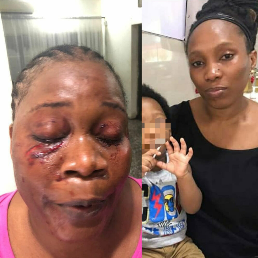 Woman allegedly disfigures her neighbour's face for reporting her actions in the compound to their lawyer