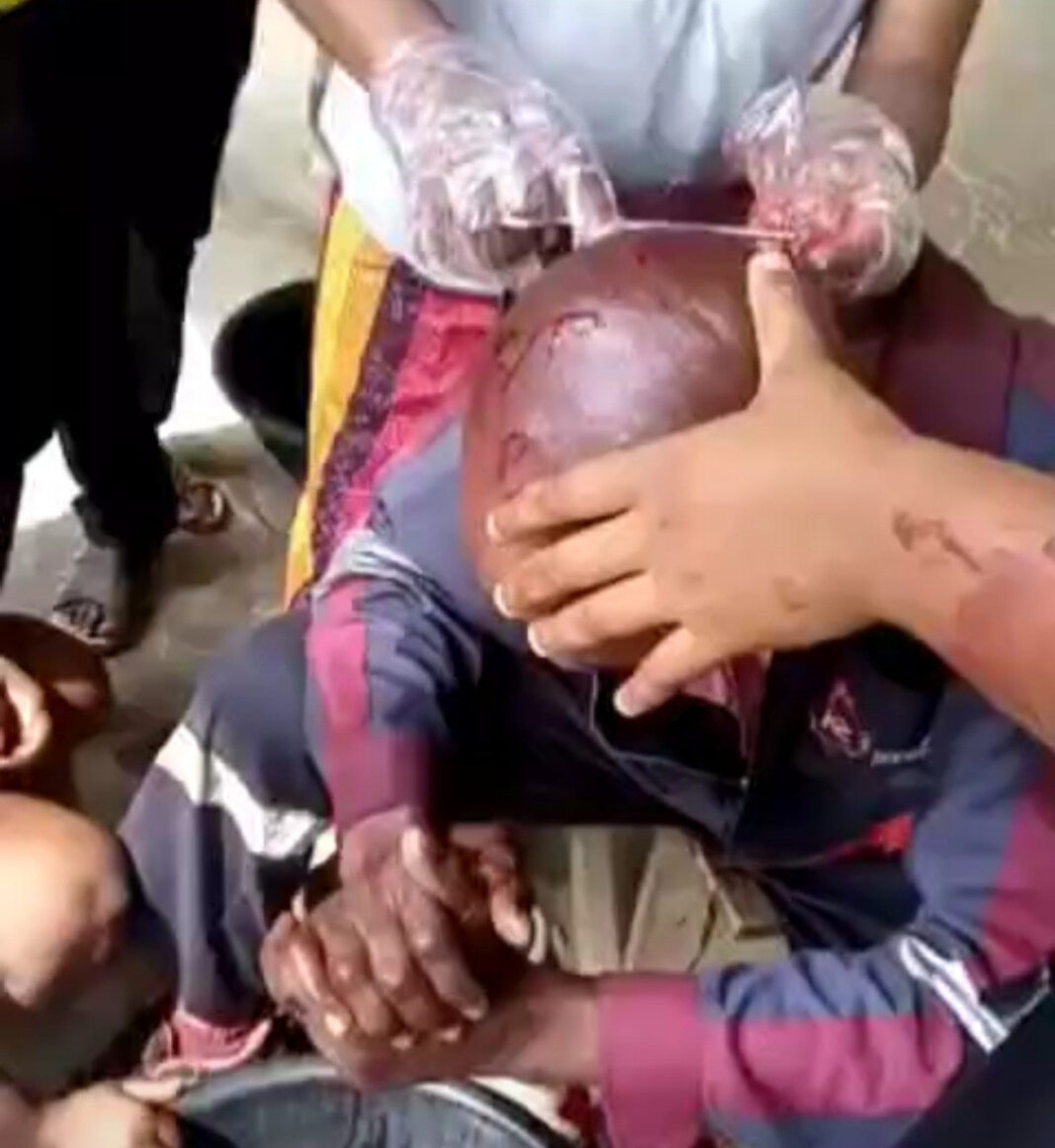 IKEDC staff stabbed on the head with bottle when he tried to disconnect power from a community (video)