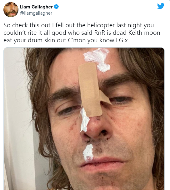 Singer Liam Gallagher suffers face injury after falling off a helicopter 1
